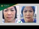 Trực tiếp khách hàng Nâng cung chân mày Hàn Quốc tại Đông Á