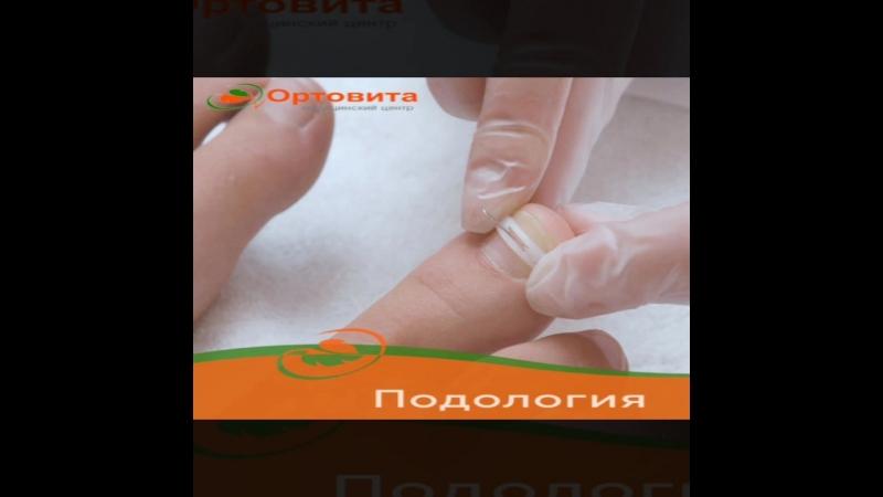 🔸 лечение вросшего ногтя без операции 👣Наши подологи могут решить проблему не прибегая к помощи хирурга который снимет ноготь и