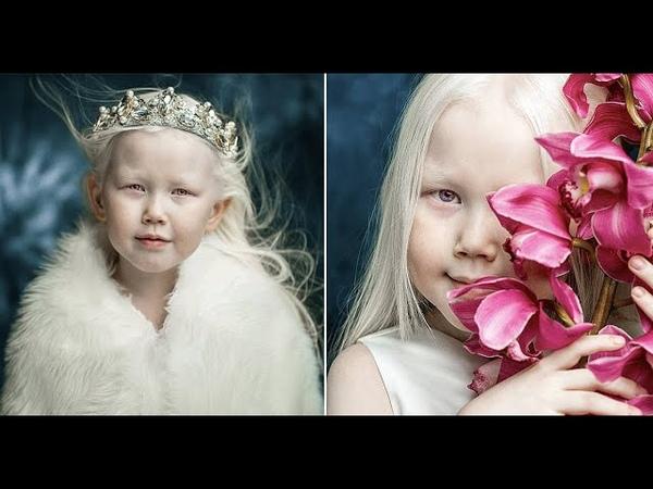 «Сибирская белоснежка» - девочка-альбинос из Якутии покоряет модельные агентства и интернет.