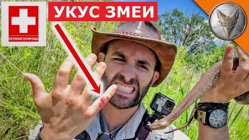 ЛЕЧИМ УКУСЫ ЗМЕИ.Что делать, если укусила змея.Brave Wilderness на русском