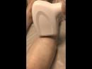 Лазерная эпиляция голени