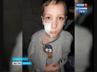 В Братске домашняя собака напала на семилетнего мальчика. Из-за травмы лица он оказался в больнице