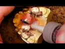 Distalizing Orthodontic Pendulum Appliance Lesson TREX Зуботехническая работа Ортодонтия