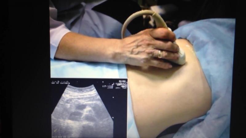 Методика ультразвукового исследования органов брюшной полости