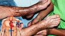 Фантастический РЕЦЕПТ, Растворяет ТРОМБЫ: Спасение для Людей, Страдающих от ВАРИКОЗА Вен !!