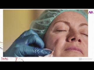 Комплексное омоложение периорбитальной зоны - инъекционные методики в косметологии [Full HD 1080p]