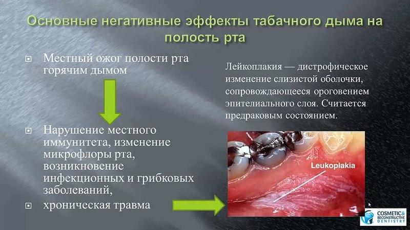 Курение и стоматологические импланты