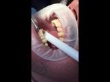 Профгигиена и обеливание зубов на 1-3 тона с Аэр-флоу (Air Flow) в АртСмайл Самара