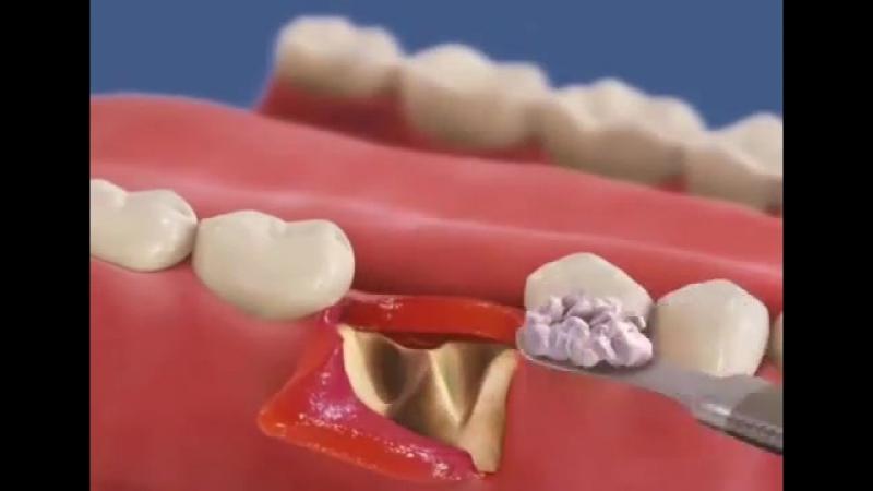 Сложное удаление зуба и подсадка кости с мембраной.mp4