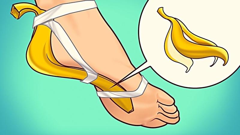 Привяжите Банановую Кожуру на 7 Дней и Посмотрите Что Произойдет с Вашим Организмом