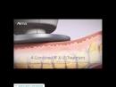 Accentuate с Accent Prime от Alma Lasers
