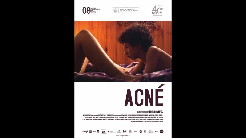 Угри _ Acné (2008)