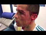Видео травмы Криштиану