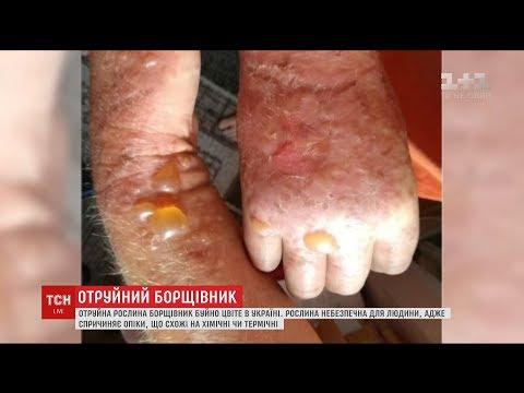 В Україні швидко розростається небезпечна для людини рослина – борщівник