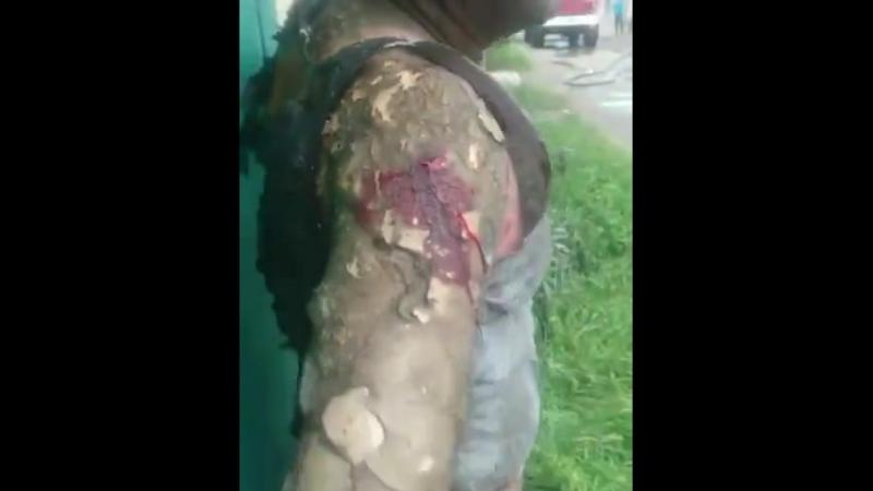 Любопытного мужчину обожгло взрывом из горящего гаража, последствия