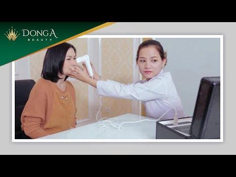 Hành trình trị Nám của chị Lê Thu Hương tại Đông Á