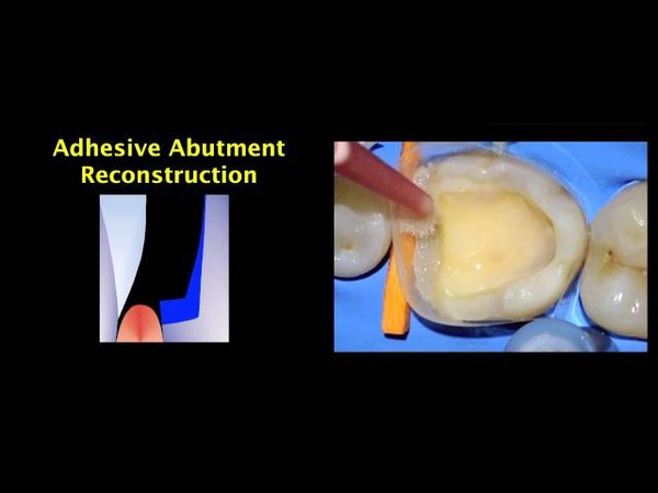 Indirect Posterior Resin Composite Restorations - Margin Relocation.