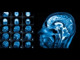 Актуальные вопросы неврологии Нарушение сна. Эпилепсия.