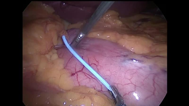 Лапароскопическая рукавная резекция желудка