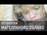 Магелланово Облако - Отголоски (Official video)