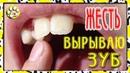 Вырываю зуб КРОВЬ больно или нет ЖЕСТЬ