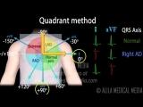 13 cardiac axis interpretation