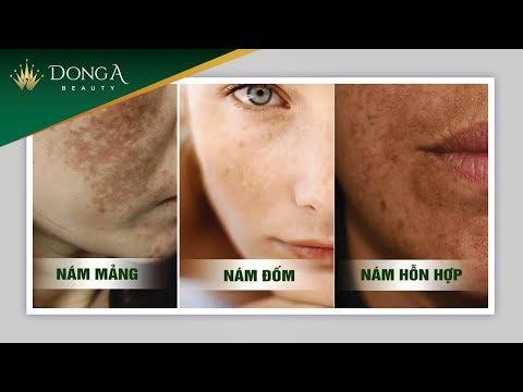 Nám da là gì? Nguyên nhân và phân loại cấp độ nám