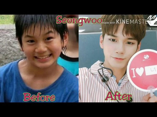 WANNA ONE | BEFORE AND AFTER 2017 [프리 데뷔 사진]