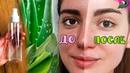 Маска для лица с алоэ вера 🌵 Делаем кожу лица свежей и безупречной с соком алоэ 🌴 POLI NA PALME