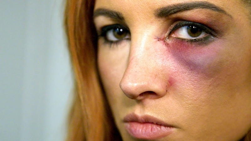 13.11.18 Becky Lynch learns she can't compete at Survivor Series: WWE Day Of
