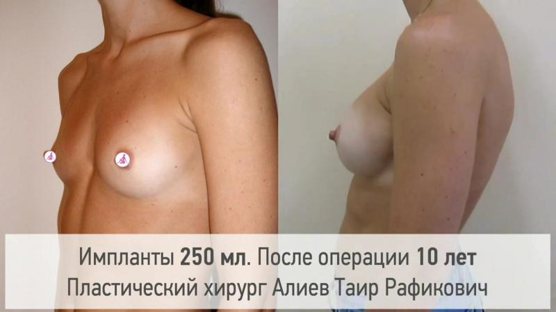Увеличение груди. Результат через 10 лет. Хирург Алиев Таир Рафикович