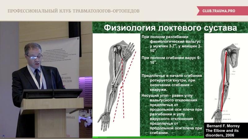 Эндопротезирование при травмах локтевого сустава и их последствиях