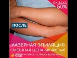 Сеть салонов лазерной эпиляции  Lachance в г. Москва