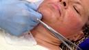 Практика студентки Применение нитей АПТОС для подтяжки кожи в области ПОДБОРОДКА