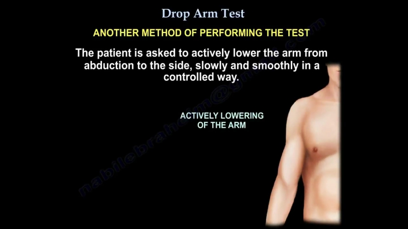 Rotator cuff tear ,Drop Arm Test - Everything You Need To Know - Dr. Nabil Ebrah