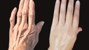 HOW TO REMOVE WRINKLES ON YOUR HANDS Clear The Hand ROUGHNESS And DRYNESS