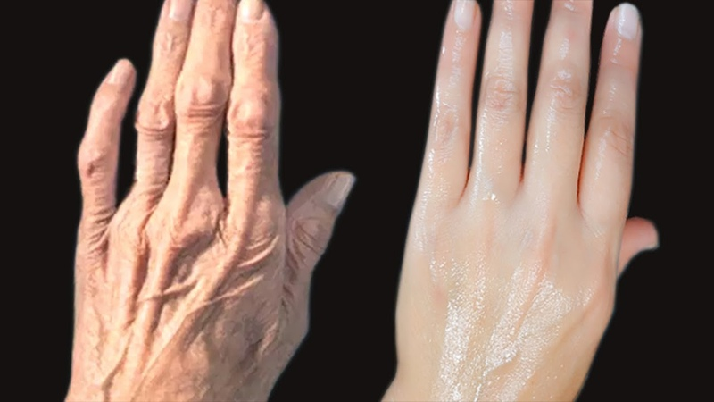 HOW TO REMOVE WRINKLES ON YOUR HANDS. Clear The Hand ROUGHNESS And DRYNESS