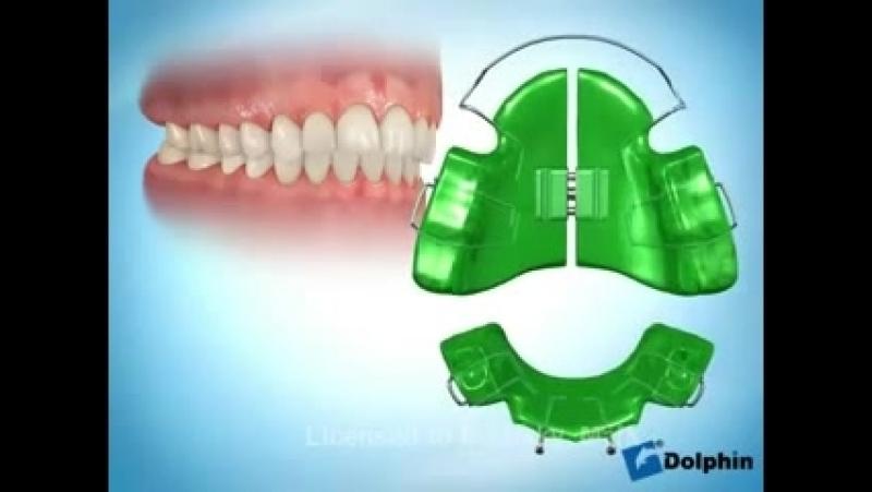 Съемный аппарат для лечения дистального прикуса