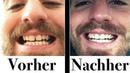 Gerade Zähne ohne feste Zahnspange
