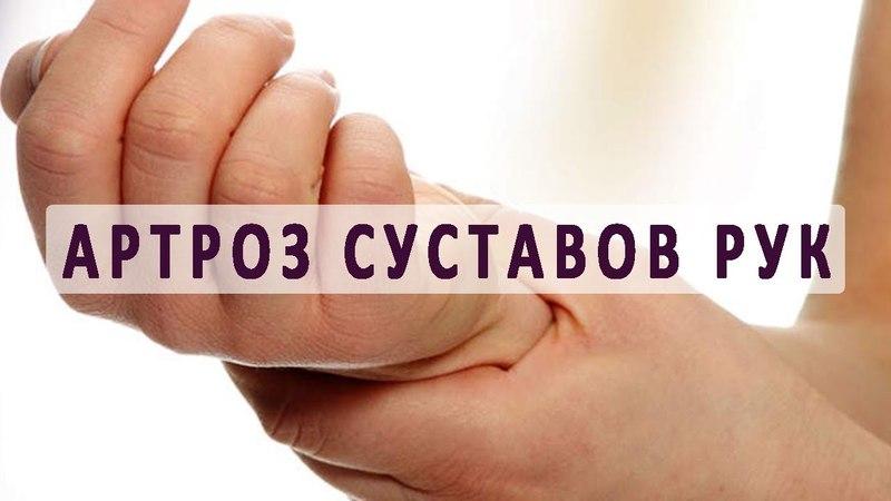 Артроз суставов рук и его лечение