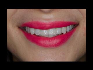 Эстетическая реабилитация зоны улыбки безметалловыми конструкциями.mp4