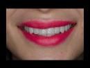 Эстетическая реабилитация зоны улыбки безметалловыми конструкциями mp4