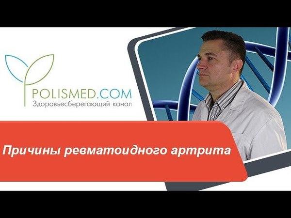 Причины ревматоидного артрита сахарный диабет, инфекция, иммунитет, стресс. Локализация РА