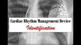 Cardiac Rhythm Management Device Identification