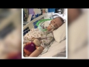 11 Jährige beklagte sich über Bauchschmerzen Chirurg hatte so etwas in 30 Jahren noch nie gesehe