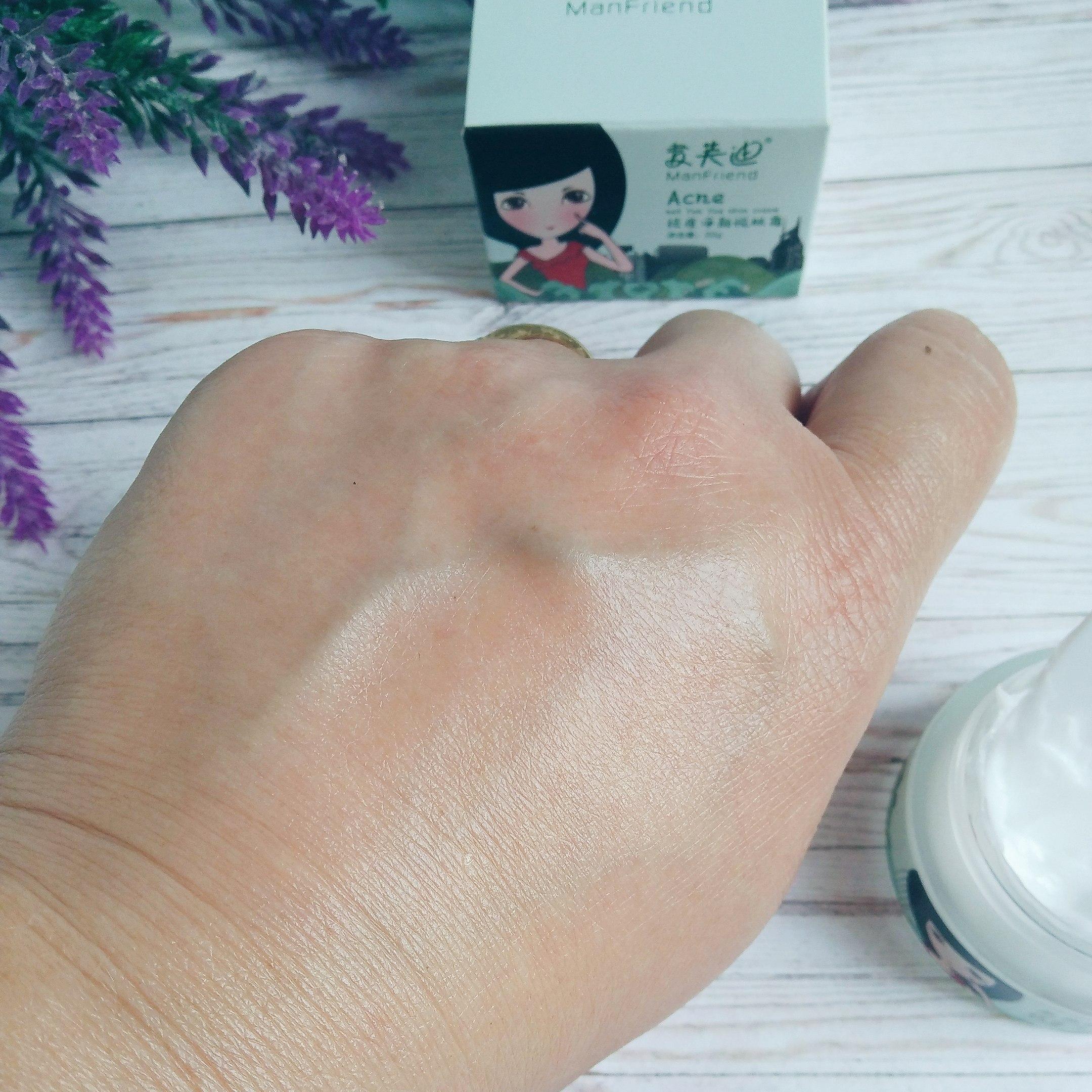 Лечебный крем для проблемной кожи и кожи склонной к появлению акне