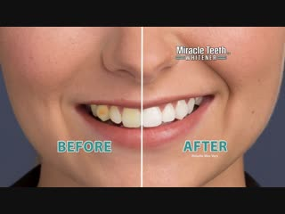 Miracle Teeth Whitener Official Commercial