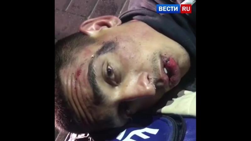 Токсикоман порезал ножом полицейских во время задержания в Подмосковье