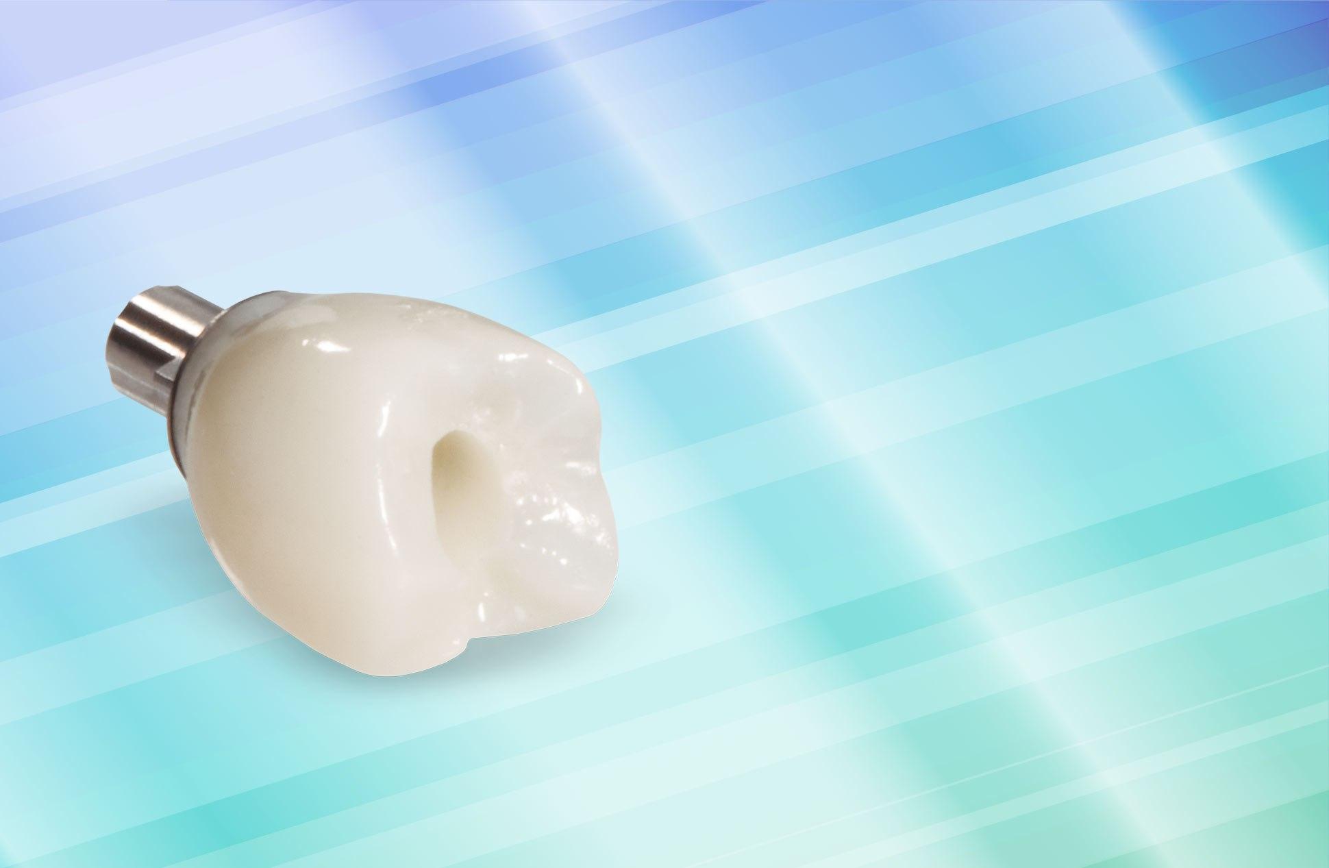 Почему происходит отторжение зубного импланта?