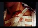 Курянке пьяные незнакомцы разбили о лицо бутылку и порезали грудь